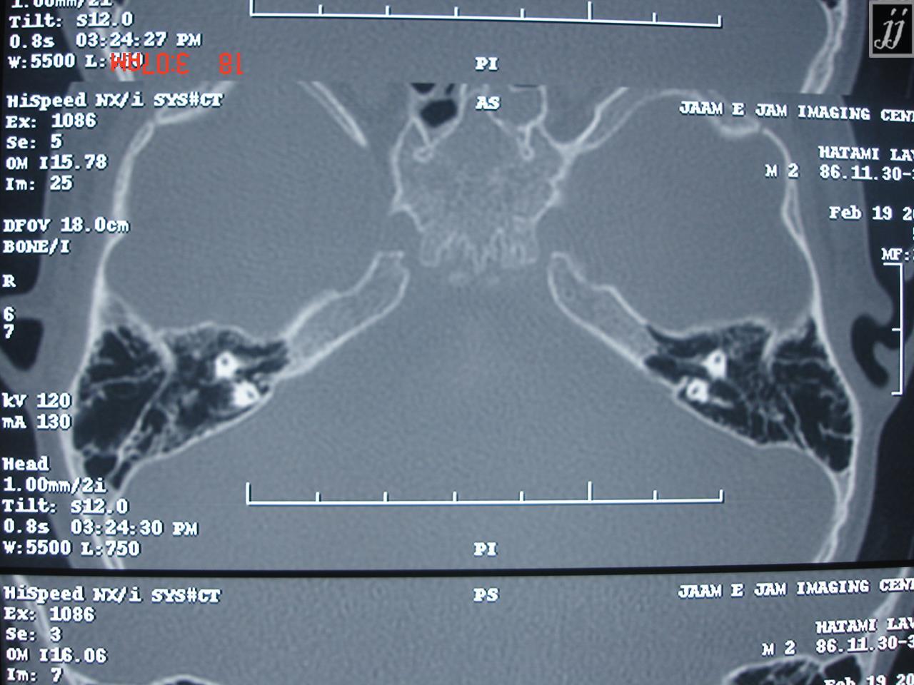 Radioogle | Brain – temporal bone anatomy