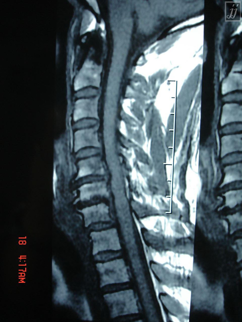 Radioogle Spine C6 C7 Disc Herniation And Cord Gliosis 5